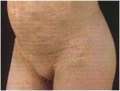 Ихтиозиформная эритродермия буллезная.