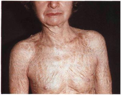 Ламеллярный ихтиоз фото. Крупные чешуйки покрывают тело.