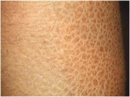 Обыкновенный ихтиоз фотография больного. Голени покрыты блестящими плотными чешуйками, напоминающими рыбью чешую.