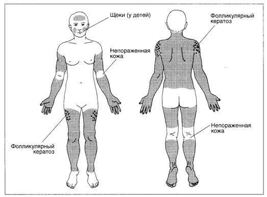 Обыкновенный ихтиоз - схема поражения кожи.